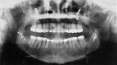 Dental Radiography - Historical Videos