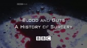 Blood and Guts: A History of Surgery (2009)