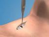 Surgical Cricothyrotomy