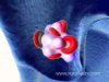 Pulmonary Embolism 3D Animation