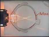 Eye, Focus, Optical Lens