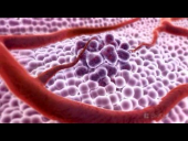 3D Medical Animation: What is Cancer?